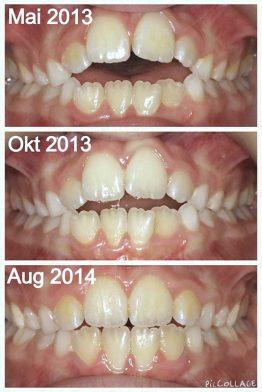 Kjevleddsproblemer tannregulering Tannami
